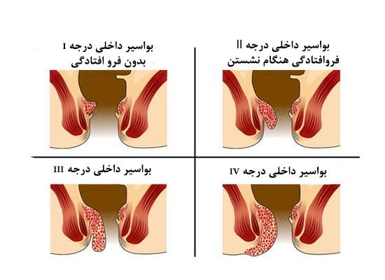 درمان بواسیر-دکتر دانش پژوه