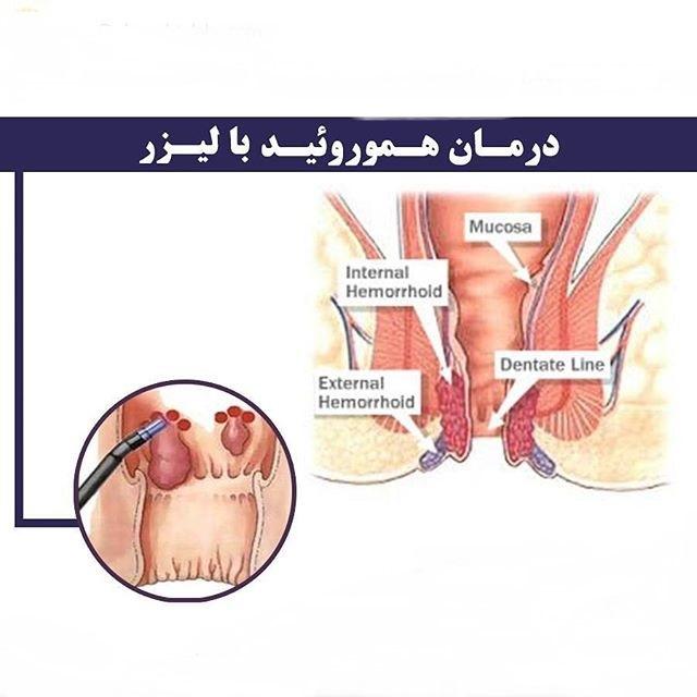 درمان هموروئید-دکتر دانش پژوه