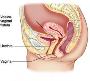 فیستول واژن چیست؟