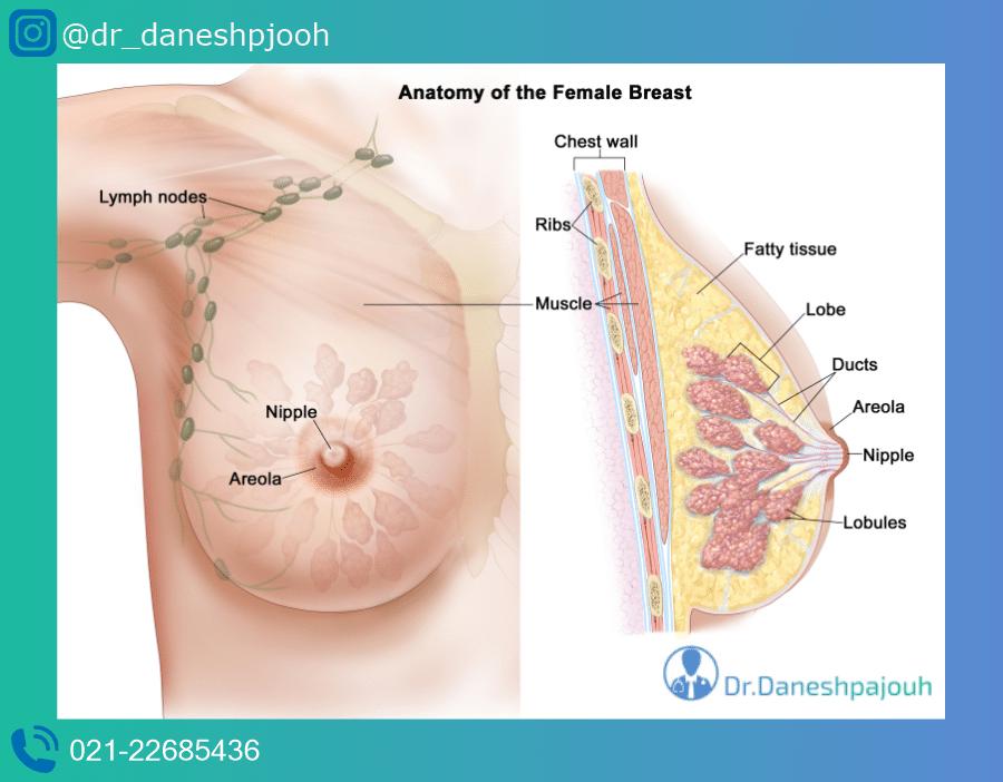 بافت پستان | لیزر کیست پستان | دکتر دانش پژوه