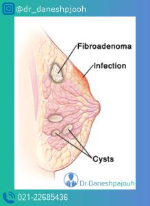 کیست پستان | لیزر کیست پستان | دکتر دانش پژوه