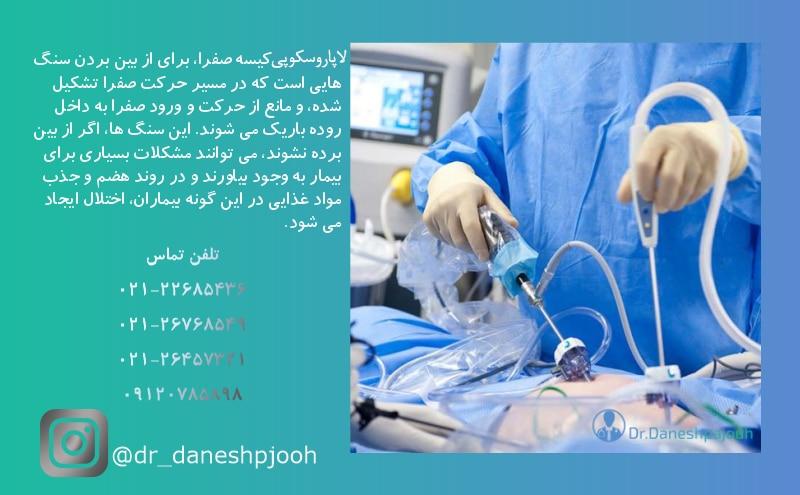 لاپاروسکپی کیسه صفرا - دکتر دانش پژوه