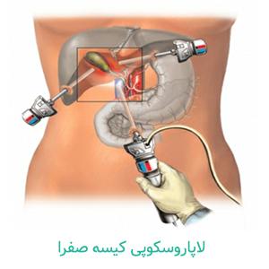 لاپاروسکوپی کیسه صفرا - دکتر دانش پژوه